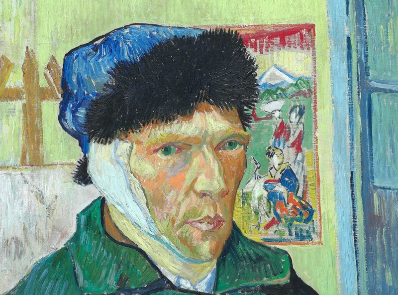 Will The Mystery Of Van Gogh's Ear Ever Be Solved?
