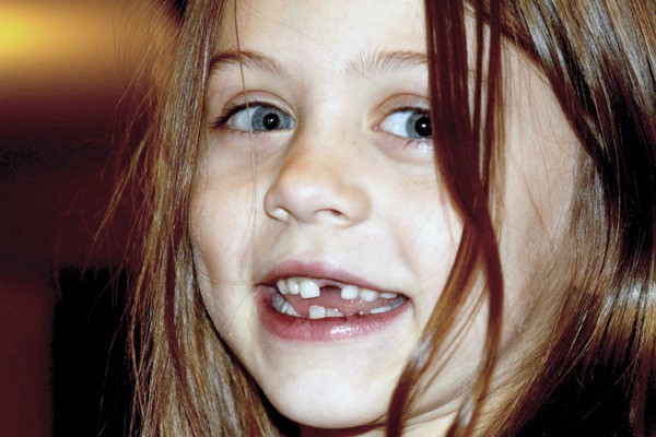 Here's Why You Should Save Your Kid's Baby Teeth